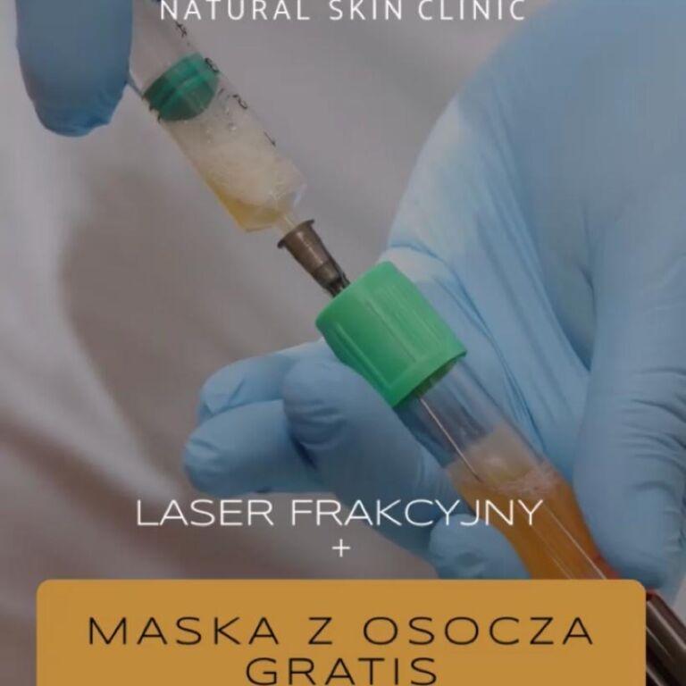 Laser frakcyjny + maska z osocza gratis
