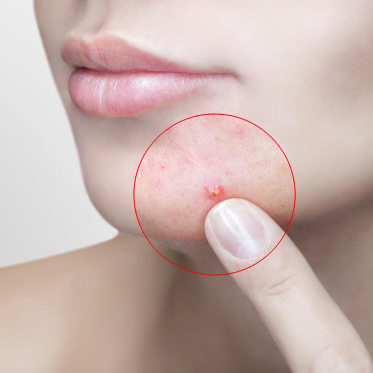 Laserowe wspomaganie leczenia trądziku